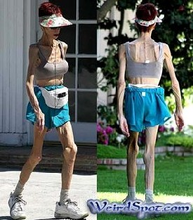 Very Anorexic Woman