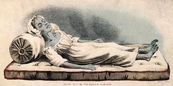 Cholera Victim